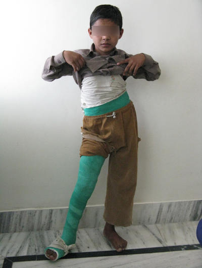 orthopedic problem in children