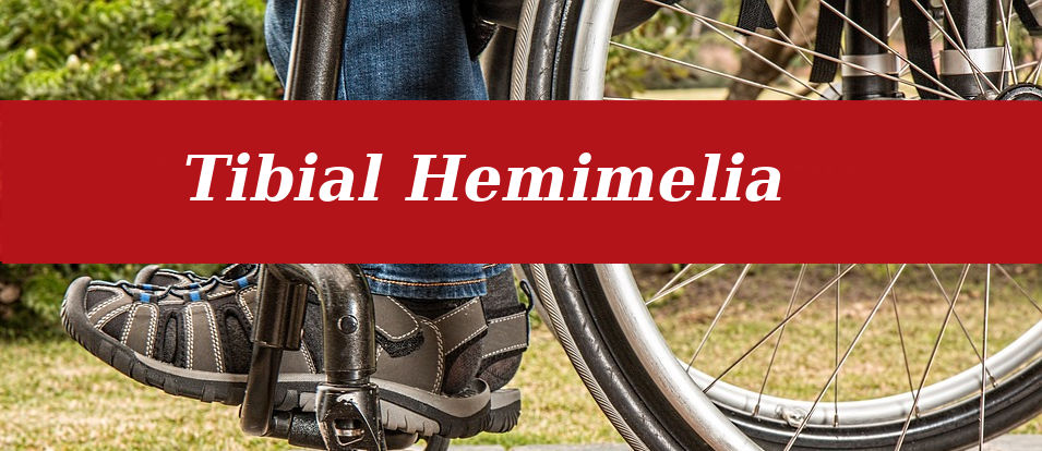 Tibial Hemimelia Treatment