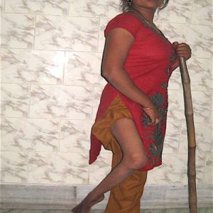 Cerebral palsy children disorder