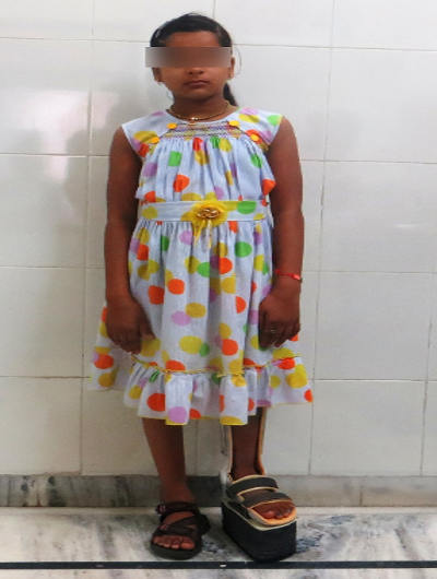 Pediatric Disability Problem in Children