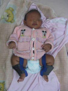 pediatric disabilities treatment case 52