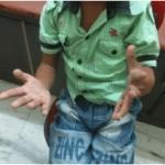 Hand deformity Cerebral Palsy