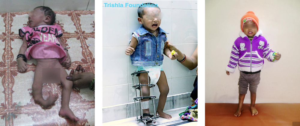 Hemiplegia Cerebral Palsy India Nepal Bangladesh