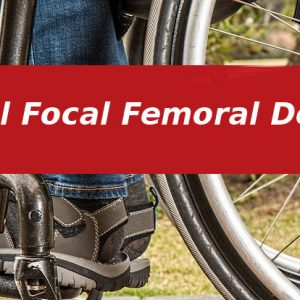 Proximal Focal Femoral Deficiency