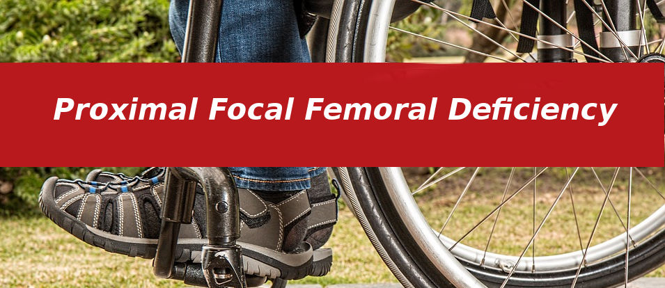 Proximal Focal Femoral Deficiency
