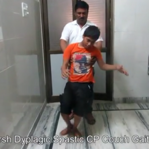 Cerebral Palsy with Crouch gait Success Story Trishla Foundation