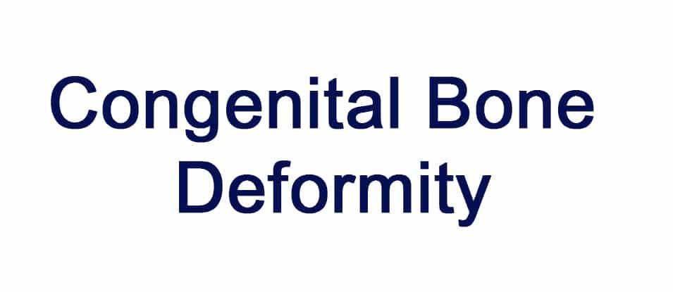 Congenital Bone Deformity