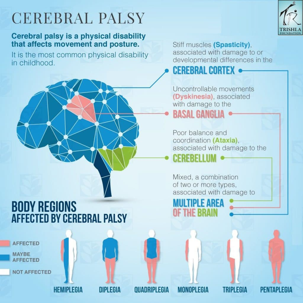cerebral palsy Trishla Foundation